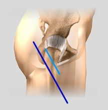 Minimally Invasive and Open Hip Replacement Incisions