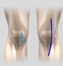 Minimally Invasive and Open Knee Joint Replacement